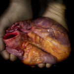 Mani di un chirurgo con un cuore in mano