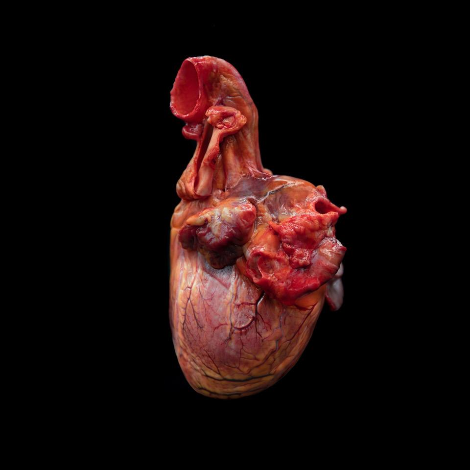 immagine raffigurante cuore umano maschile